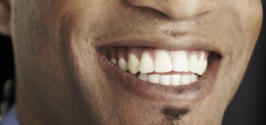 13 Easy And Natural Means Of Making Your Teeth Whiter Finelib